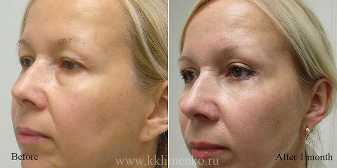 Омоложение век, оперирующий хирург К.Клименко. Фото до и после