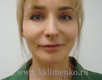 Пластика подбородка у хирурга Клименко. Фото после операции