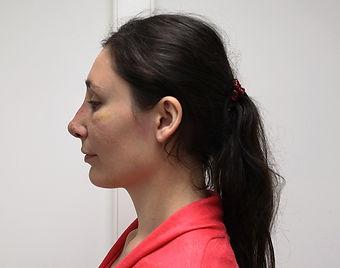 Риносептопластика у хирурга Клименко. Фото пациентки через 11 дней после операции риносептопластика
