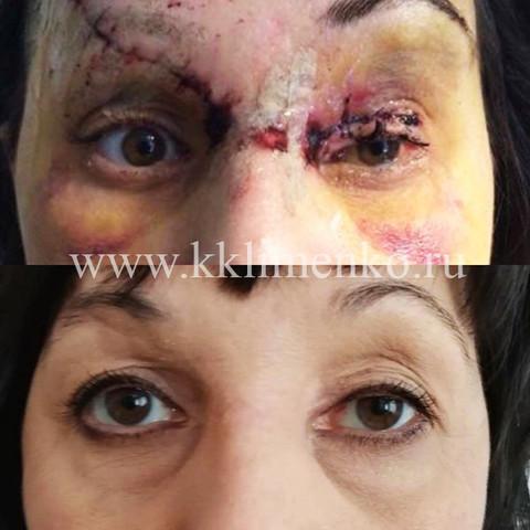 Пластический хирург Константин Клименко. Восстановление лица после автомобильной аварии