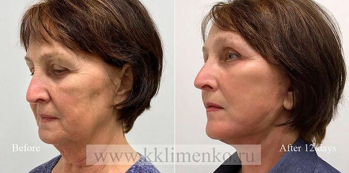 Омоложение лица и шеи, оперирующий хирург К.Клименко. Фото до и после