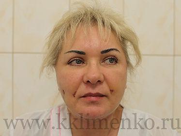 Фото через 4 недели после операции SMAS-лифтинг у доктора Клименко