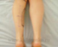 Предоперационная разметка на коже перед круропластикой. Оперирующий хирург Клименко