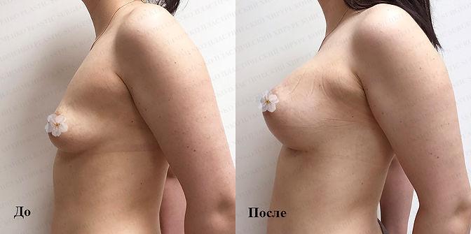 Эндопротезирование груди, оперирующий хирург К.Клименко