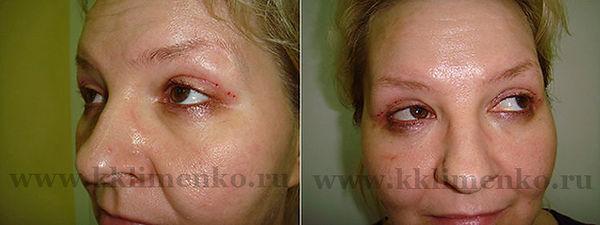 Омоложение лица. Фото через две недели после операции у доктора Клименко