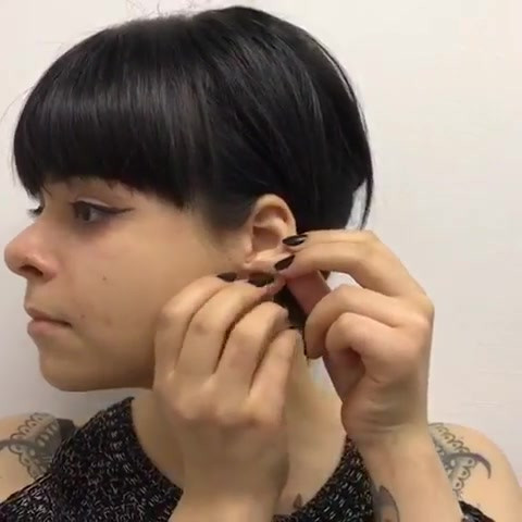 Пластика уха