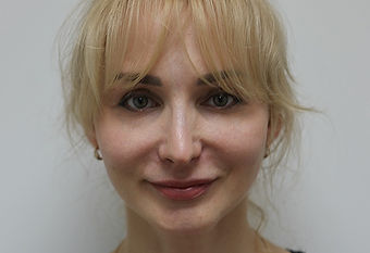 Фото через 3 месяцапосле операции ментопластика у пластического хирурга Константина Клименко