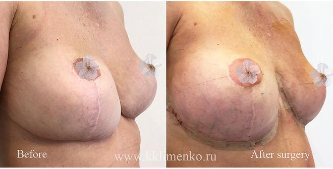 Коррекция подтяжки груди, фото до и после операции