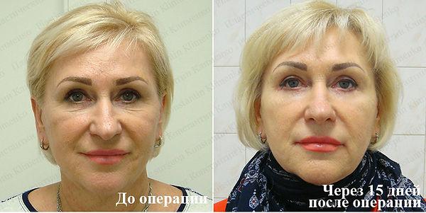 Комбинированные методики омоложения лица, оперирующий хирург К.Клименко. Фото до и после