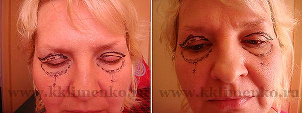 Омоложение лица, фото перед операцией у доктора Клименко