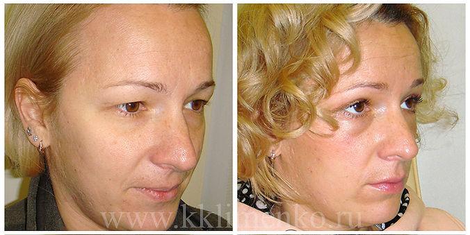 Омоложение лица, оперирующий хирург К.Клименко