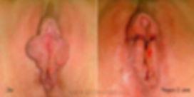 Пациентка 35 лет. Жалобы на наличие избыточной ткани больших половых губ. Считает это большим недостатком своей внешности. Данная проблема доставляет как физические, так и эстетические неудобства.  Пациентке выполнена лазерная лабиопластика больших половых губ.  Преимущества проведенной операции: сохранена чувствительность больших половых губ, предотвращено пересыхание влагалища, при ношении нижнего белья, в том числе стрингов, пациентка не будет испытывать дискомфорт.