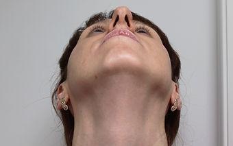 Риносептопластика у хирурга Клименко. Фото пациентки через 5 дней после риносептопластики
