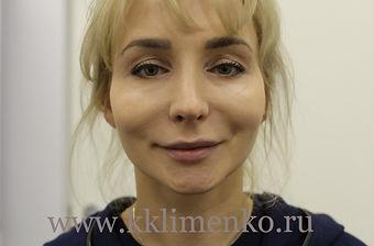 Пластика подбородка у хирурга Клименко. Фото перед операцией