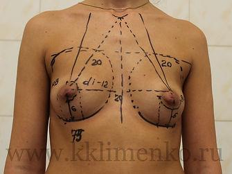 Увеличение груди у хирурга Клименко. Фото перед операцией, разметка