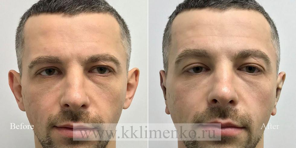 Пластический хирург К.Клименко: фото до и после операции