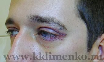 Блефаропластика верхних и нижних век, фото через 5  дней после операции. Хирург Клименко