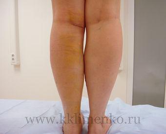 Фото икроножных мышц пациента через 7 дней после операции, вид сзади. Оперирующий хирург Клименко