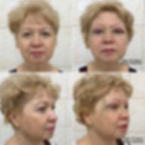 Блефаропластика верхних век, оперирующий хирург К.Клименко. Фото до и сразу после операции