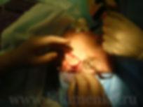 Операция SMAS-лифтинг у хирурга Клименко