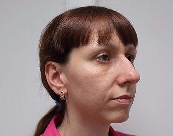 Риносептопластика у хирурга Клименко. Фото пациентки до риносептопластики