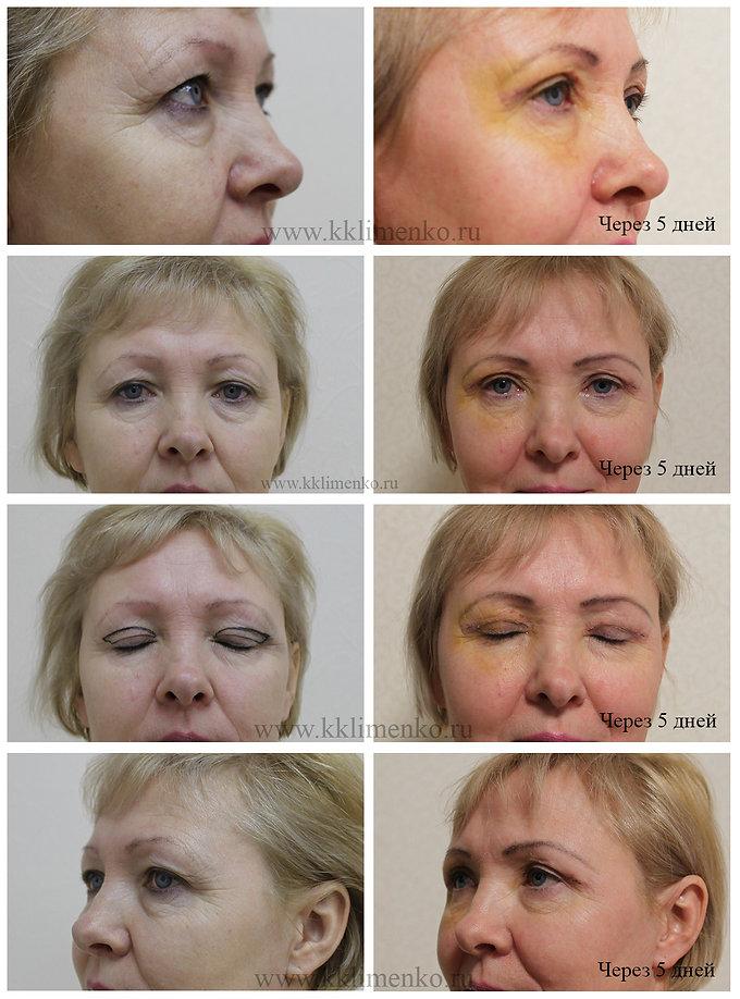 Блефаропластика верхних век, оперирующий хирург К.Клименко. Фото до и после