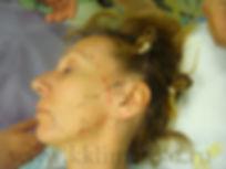 Операция SMAS у хирурга Клименко, Разметка на коже. Проекция лицевого нерва