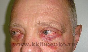 Блефаропластика верхних и нижних век, чек-лифтинг. Фото через 7 дней после операции. Хирург Клименко