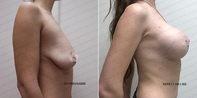 Вертикальная мастопексия. Фото до и через 1 месяц после подтяжки груди с установлением имплантатов. Хирург К.Клименко