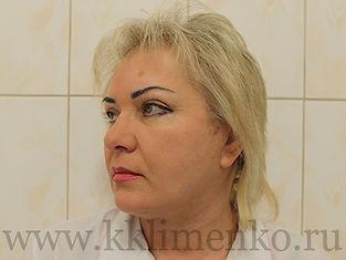 Фото через 3 месяца после операции SMAS-лифтинг у доктора Клименко