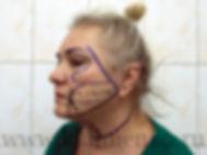 Перед операцией SMAS-ифтинг у хирурга Клименко