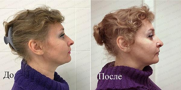 Пластика кончика носа, оперирующий хирург Константин Клименко