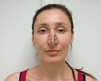 Риносептопластика у хирурга Клименко. Фото пациентки с предварительной разметкой носа