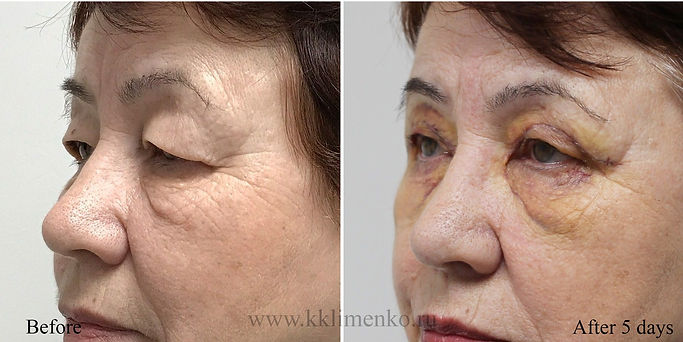 Омоложение верхних век, оперирующий хирург К.Клименко. Фото до и после