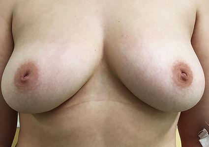 Коррекция втунутого сосочка молочных желез, оперирующий хирург К.Клименко