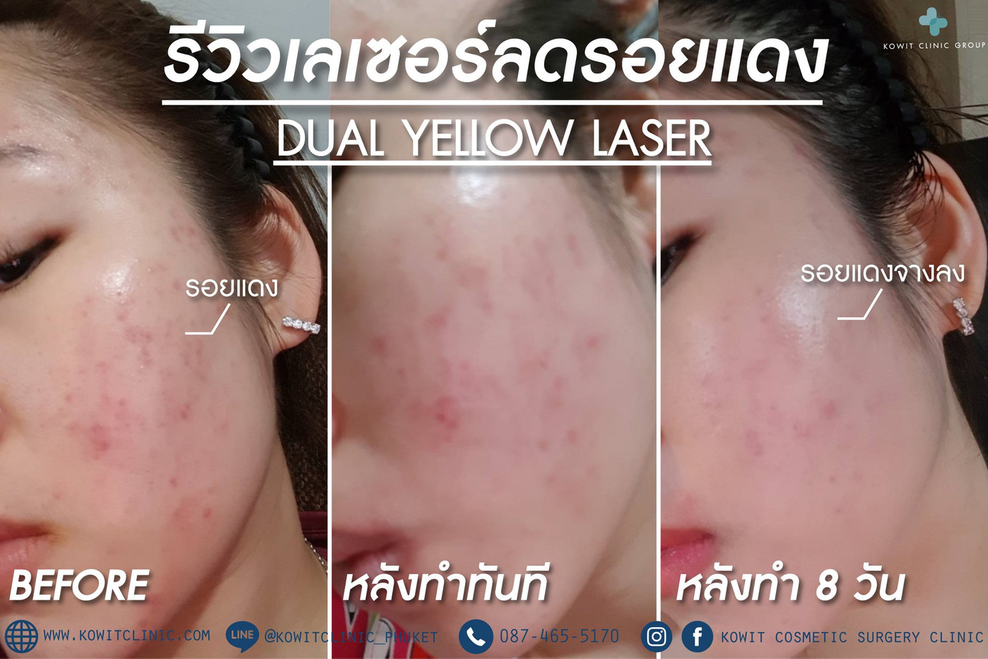Dual Yellow.jpg