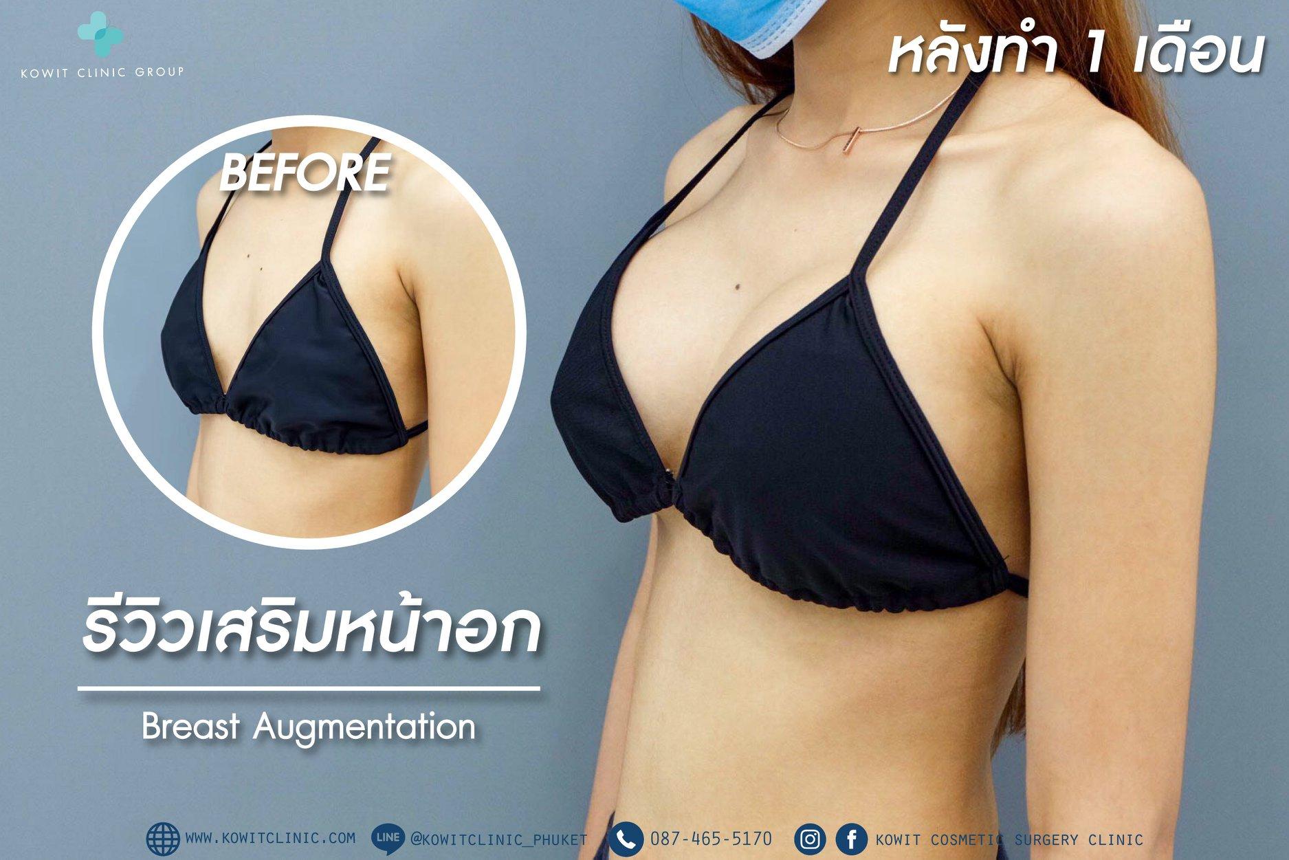 เสริมหน้าอก Breast Implant
