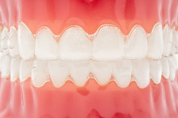 Simister-Teeth-2-of-4.jpg