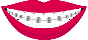 Smile with Braces.png