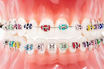 Metal braces.jpg