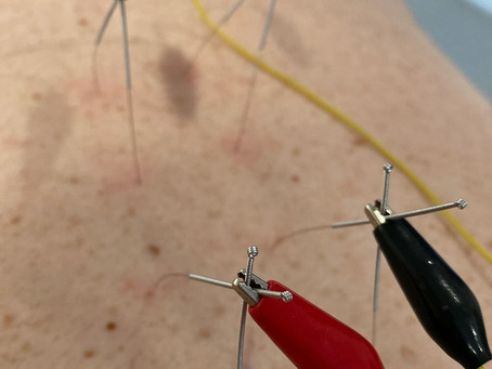 What is Neurofunctional Electro-Acupuncture?