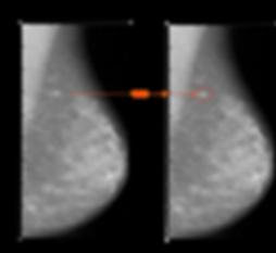 mamo detection 2d.png