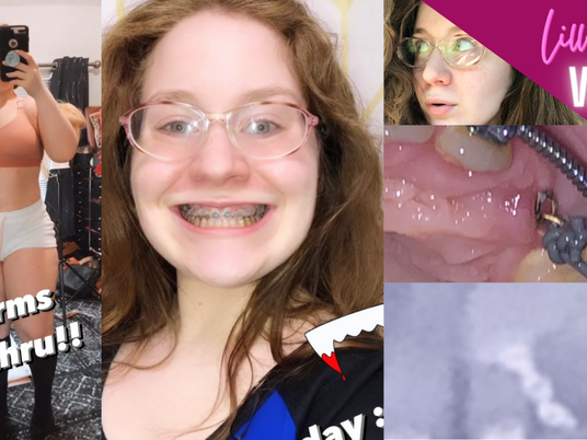 Lillee Jean Vlog - METAL Braces COIL Pain, Interview, and Working Out 2021