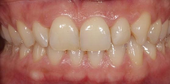 blanqueamiento dental Las Palmas