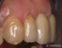 dentista las palmas cirugia oral