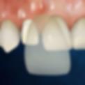 carillas dentales las palmas