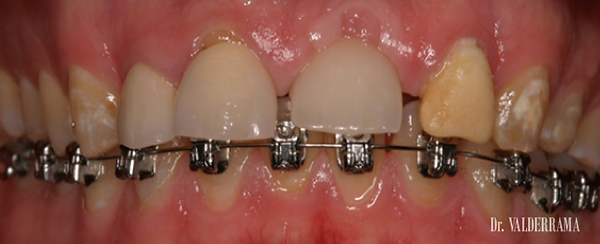 Implantes dentales Las Palmas