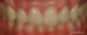 clinica dental las palmas implantes