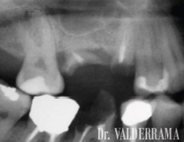 clinica dental las palmas