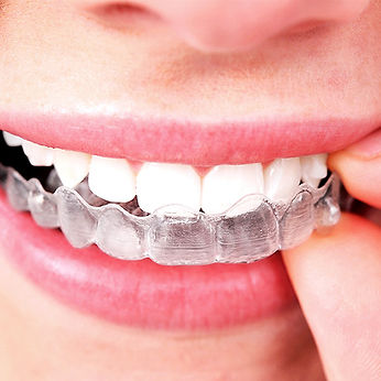 Care-After-Invisible-Aligners_543.jpg